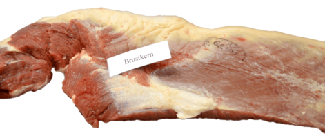 Brustkern